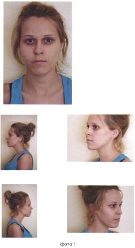 Способ обеспечения доступа при хирургическом лечении новообразований верхней челюсти