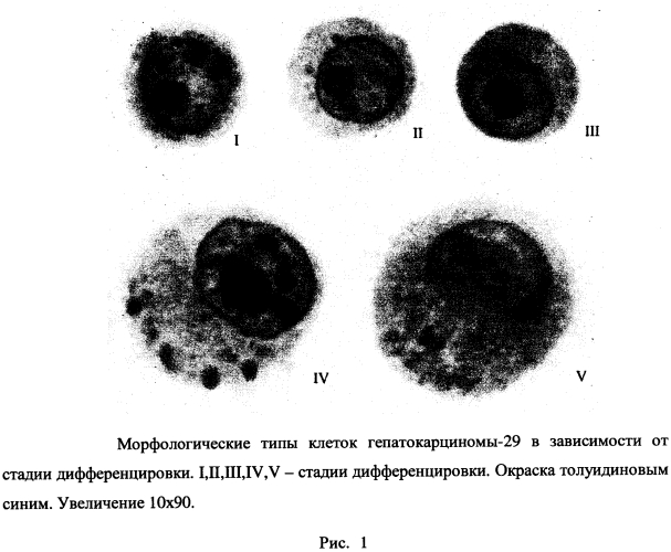 Способ воздействия на клетки гепатокарциномы в зависимости от стадии их дифференцировки нанопрепаратами лития