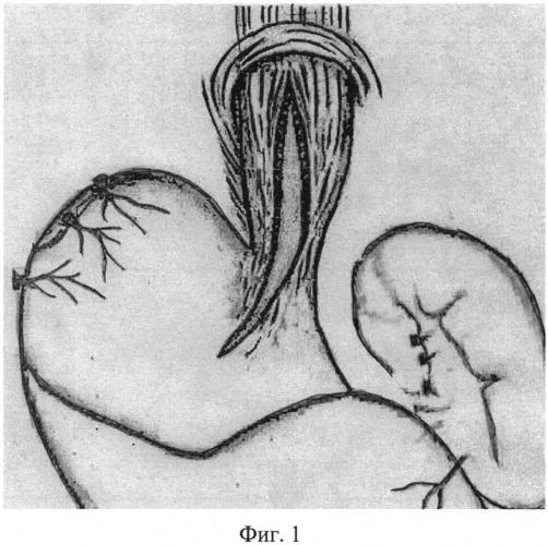 Способ хирургического лечения ахалазии кардии