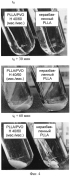 Смеси полимолочной кислоты и растворимого в воде полимера