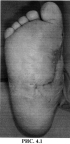 Способ хирургического лечения диабетической остеоартропатии среднего отдела стопы в стадии гнойных осложнений
