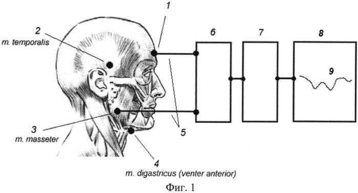 Способ регистрации моторной работы жевательной мускулатуры у человека