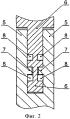Разгрузочное динамическое межпозвонковое устройство