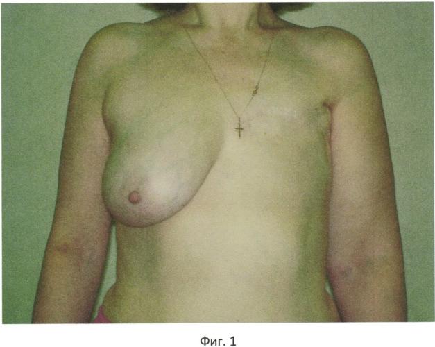 Способ реконструкции молочной железы