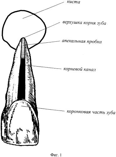 Способ лечения хронического гранулематозного периодонтита
