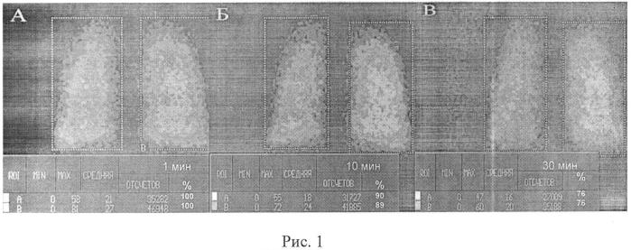 Способ диагностики инфильтративного туберкулеза легких, протекающего на фоне хронической обструктивной болезни легких