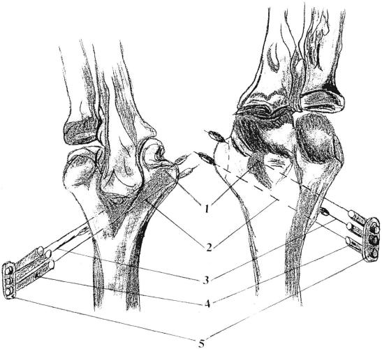 Способ лечения ложного сустава апофизов плечевой кости у детей