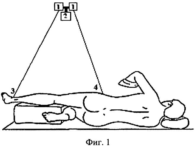 Способ определения длины конечности при эндопротезировании тазобедренного сустава