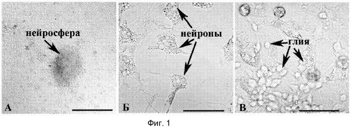 Способ культивирования стволовых клеток, препятствующий их спонтанной дифференцировке (варианты)