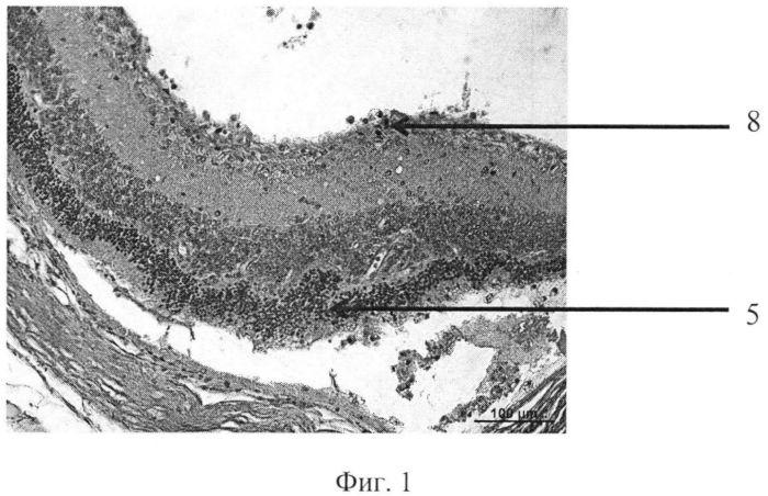 Способ моделирования пролиферативной витреоретинопатии у крыс