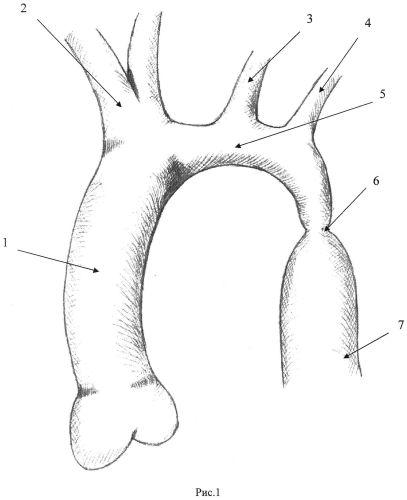 Способ коррекции коарктации и рекоарктации аорты в сочетании с гипоплазией дуги аорты