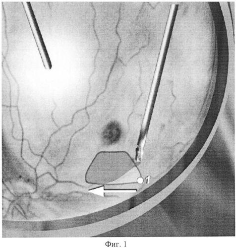 Способ формирования фовеолярного фрагмента внутренней пограничной мембраны при хирургическом лечении макулярного отека различной этиологии