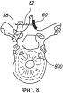 Позвоночное устройство с храповым механизмом