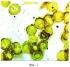 Способ оценки устойчивости мембран эритроцитов при обострении цитомегаловирусной инфекции путем измерения гистохимическим методом содержания ионов кальция в эритроцитах периферической крови беременных