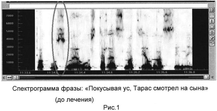 Способ оценки качества протезирования зубов путем фонетического контроля