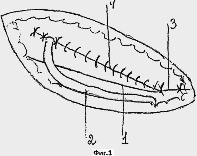 Ненатяжная фасциально-апоневротическая пластика паховой стенки при герниотомии