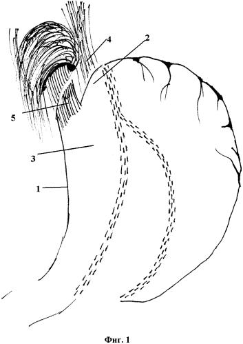Способ выполнения бариатрических лапароскопических операций