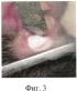 Способ лечения веррукозной формы лейкоплакии слизистой оболочки полости рта