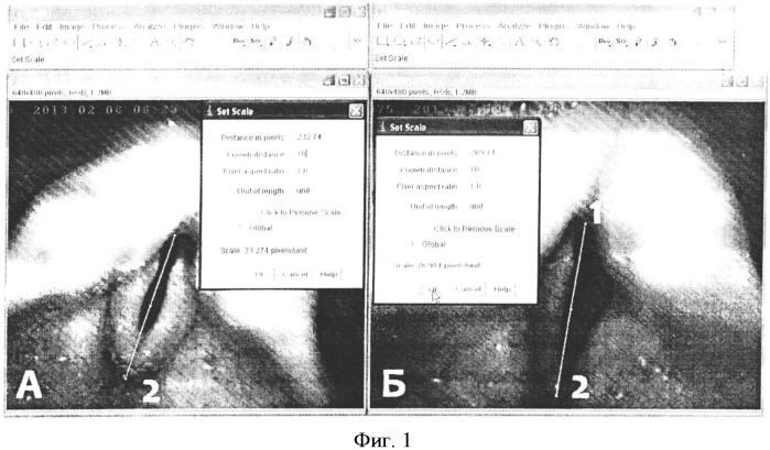 Способ определения изменения площади голосовой щели в динамике проводимого лечения