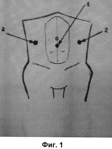 Способ лапароскопической герниопластики при двусторонних паховых грыжах