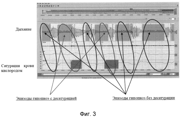 Способ диагностики синдрома обструктивного апноэ/гипопноэ сна