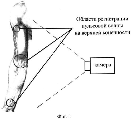 Способ автоматизированной дистанционной оценки скорости распространения пульсовой волны