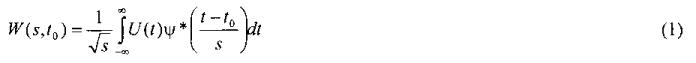 Способ выделения веретеноподобных паттернов по временным данным электроэнцефалограмм