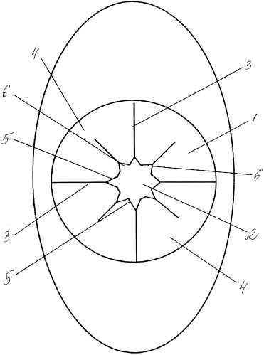 Универсальный иглосъемник для удаления медицинских игл