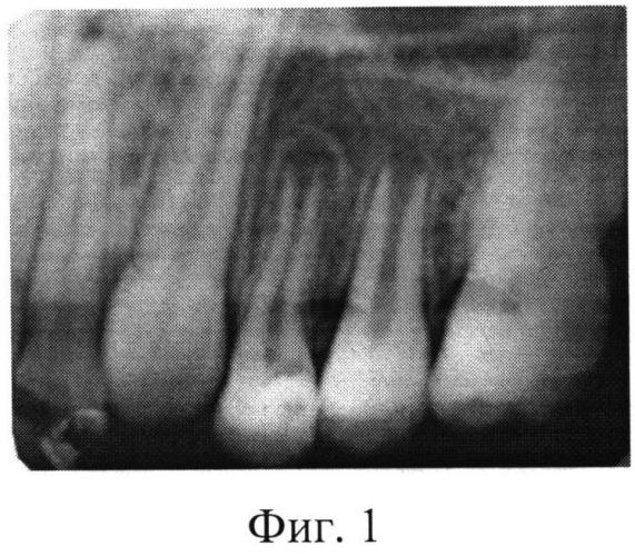Способ лечения хронического фиброзного пульпита постоянных зубов с несформированными корнями