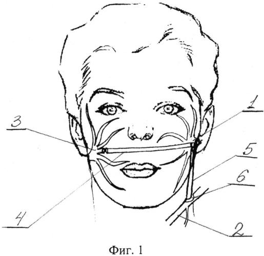 Способ устранения паралича мимических мышц