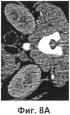 Рентгеновская визуализация при низких концентрациях контрастного агента и/или низкой дозе излучения