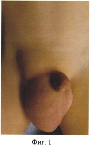 Грыжа у новорожденных, грудничков (53 фото): грыжа белой