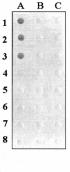 Штамм гибридных клеток животных mus musculus 3f11 - продуцент моноклональных антител, специфичных к ботулиническому токсину типа b