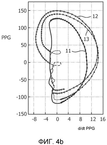 Способ и устройство для обработки фотоплетизмографических сигналов