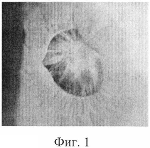 Способ лазерного переднего капсулорексиса при контракционном синдроме