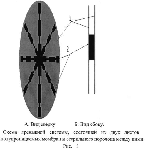 Способ создания активной лапаростомии