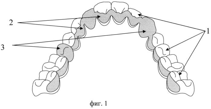Фрезерованная зубная шина