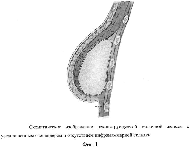 Способ формирования инфрамаммарной складки при двухэтапной реконструкции молочной железы