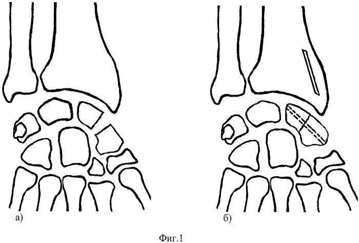 Способ лечения ложных суставов ладьевидной кости
