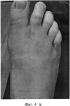 Способ определения наклона суставной поверхности головки первой плюсневой кости стопы