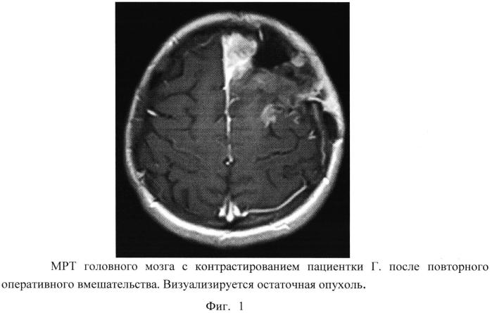 Способ термохимиолучевого лечения злокачественных глиом головного мозга