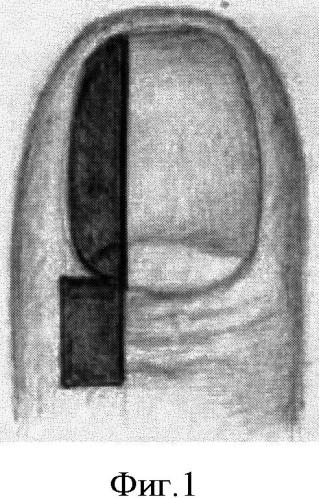 Способ операции при вросшем ногте первого пальца стопы