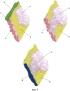 Способ исследования опухоли поджелудочной железы, способ исследования резецированного органокомплекса и его применение