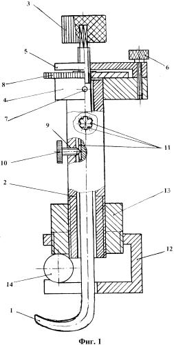 Устройство для импрегнации костных фрагментов при травматическом стенозе позвоночного канала