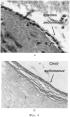 Трубчатый имплантат органов человека и животных и способ его получения