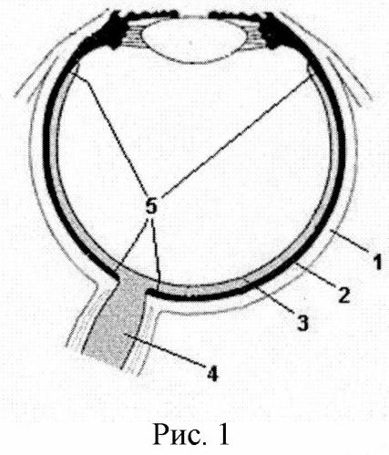 Способ получения культуры клеток ретинального пигментного эпителия из глаза взрослого донора-трупа
