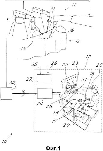 Роботизированная хирургическая система с усовершенствованным управлением