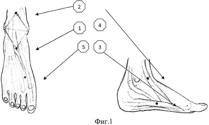 Способ лечения статических деформаций стопы