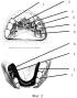 Блочный двухчелюстной ортодонтический аппарат для лечения суставной формы трансверсальной аномалии окклюзии