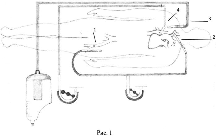 Способ унилатеральной перфузии головного мозга при операциях на дуге аорты